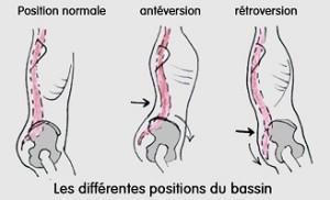 position_bassin_dos_anteversion_retroversion